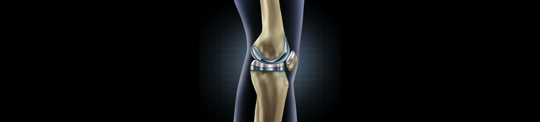 Total Joint Replacement Program