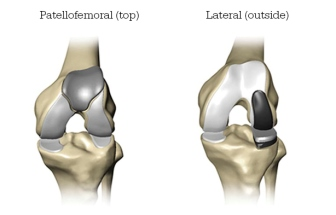 partial knee replacement graphic