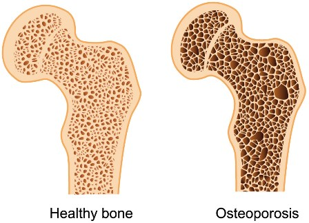 Image result for bone density