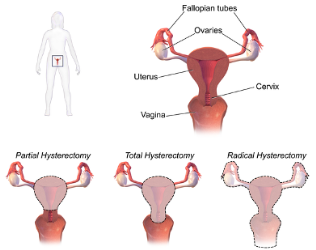 Hysterectomy Diagram