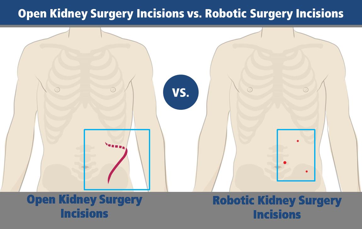 Robotic Urologic Surgery