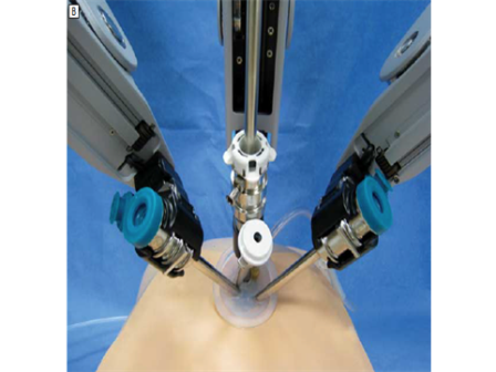 Robotic Single Incision Gallbladder Surgery