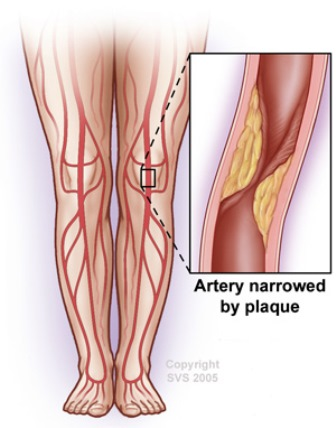 artery blocked by plaque